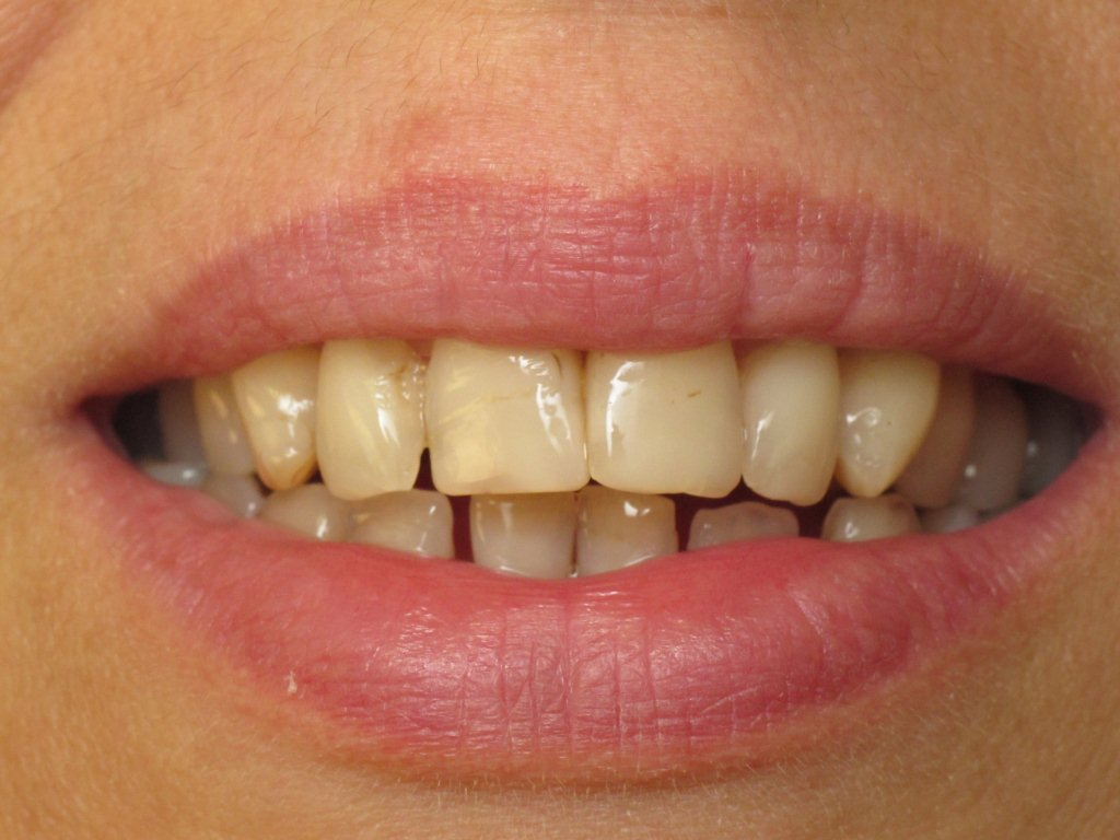 Stained Teeth - Why you have them, and What to Do