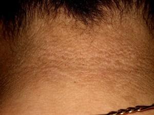 eliminar manchas oscuras en la piel