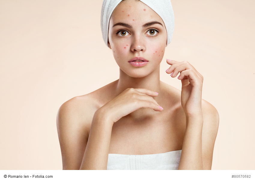 Scowling girl in shock of her acne with a towel on her head.