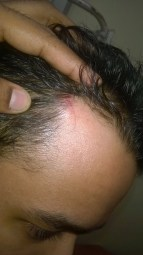 KEM Hospital Pediatric resident doctors assaulted by relatives of patient , wound on head