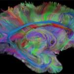 brain-wedden-2009