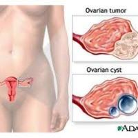 New Treatment for Ovarian Cancer Discovered #OvarianCancer