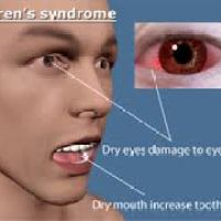 Sjogren's Syndrome Can Increase the Risk for Heart Attacks
