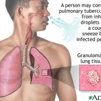 New Test for Tuberculosis Can Detect Latent Infection