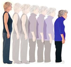 Osteopororis