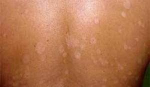 Penyakit Jamuran