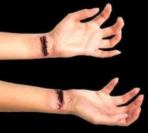 bekas luka di kulit wanita