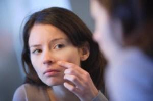 Tips dan Cara Merawat Wajah Berjerawat