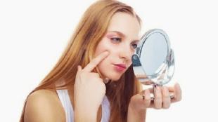 Tips Mengilangkan Panu di Wajah Secara Alami