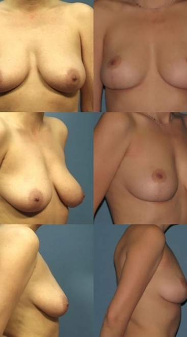Breast Lift Case A