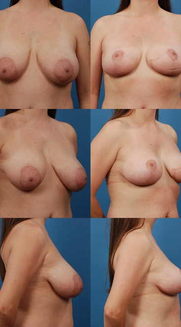 Breast Lift Case G