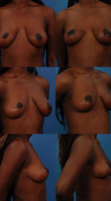 Breast Lift Case C