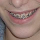 יישור שיניים עם סמכים אורתודונטים