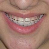 שמירה על השיניים לאחר הטפול עם פלטה ניידת