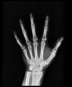 black-and-white-bones-hand-207496
