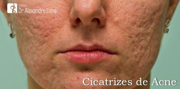 Cicatrizes-Acne-Dr-Alexandre-Lima-Dermatologista-Belo-Horizonte-BH