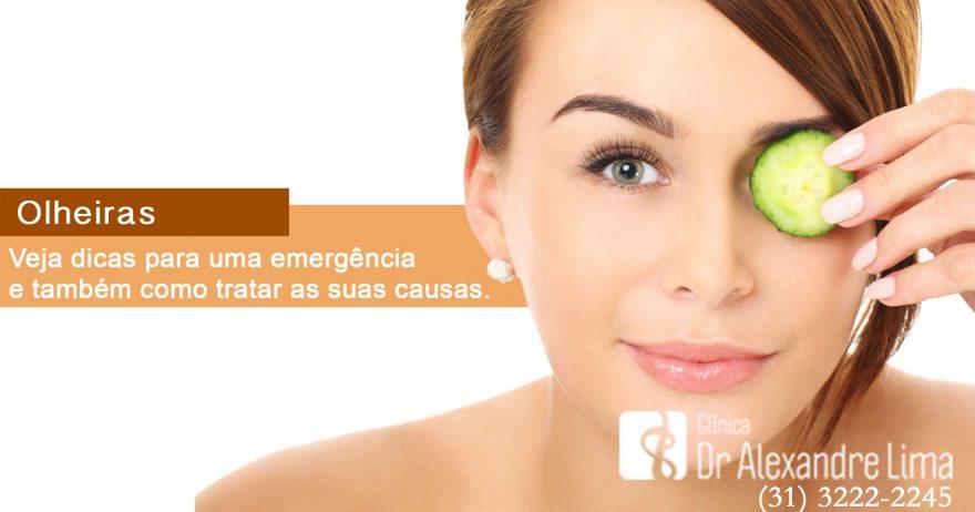Como-Tirar-Olheiras-Dr-Alexandre-Lima-Dermatologista-BH-Belo-Horizonte