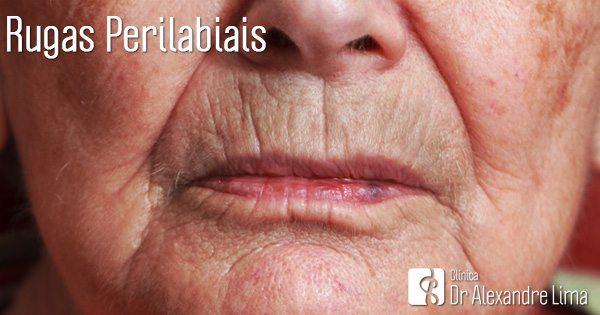 Rugas-Linhas-Redor-Boca-Labios-Perilabiais-Dr-Alexandre-Lima-Dermatologista-Belo-Horizonte-BH