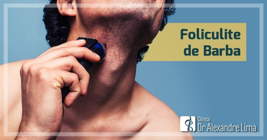 Foliculite-de-Barba-Dr-Alexandre-Lima-Dermatologista-Belo-Horizonte-BH