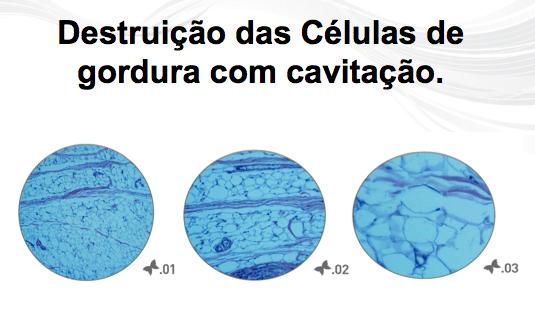 Lipocavitacao-Destruicao-Celulas-Gordura-Belo-Horizonte