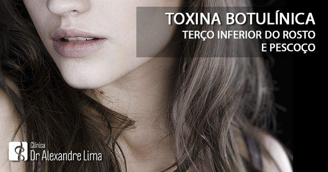 Botox-Terco-Inferior-Pescoco-Dr-Alexandre-Lima-Dermatologista-Belo-Horizonte-BH