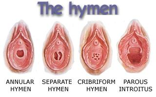 hymen-types