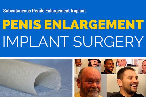 Penile Enlargement Animation Image