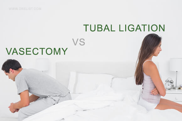 Vasectomy vs Tubal Ligation iamge