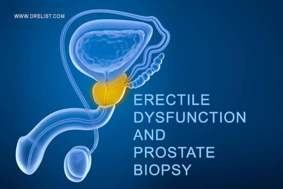 Erectile Dysfunction And Prostate Biopsy