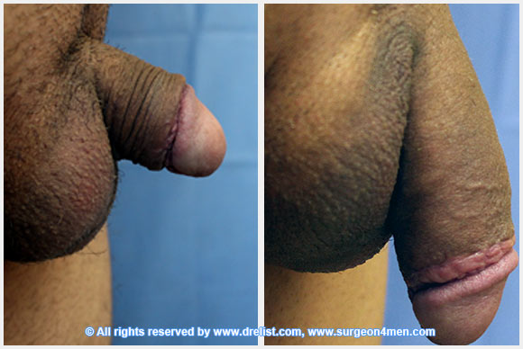 Penis Enlargement with Hyaluronic Acid Girth Injections