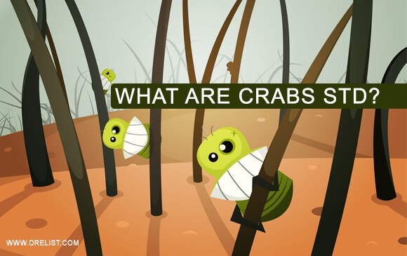 What Are Crabs STD? image