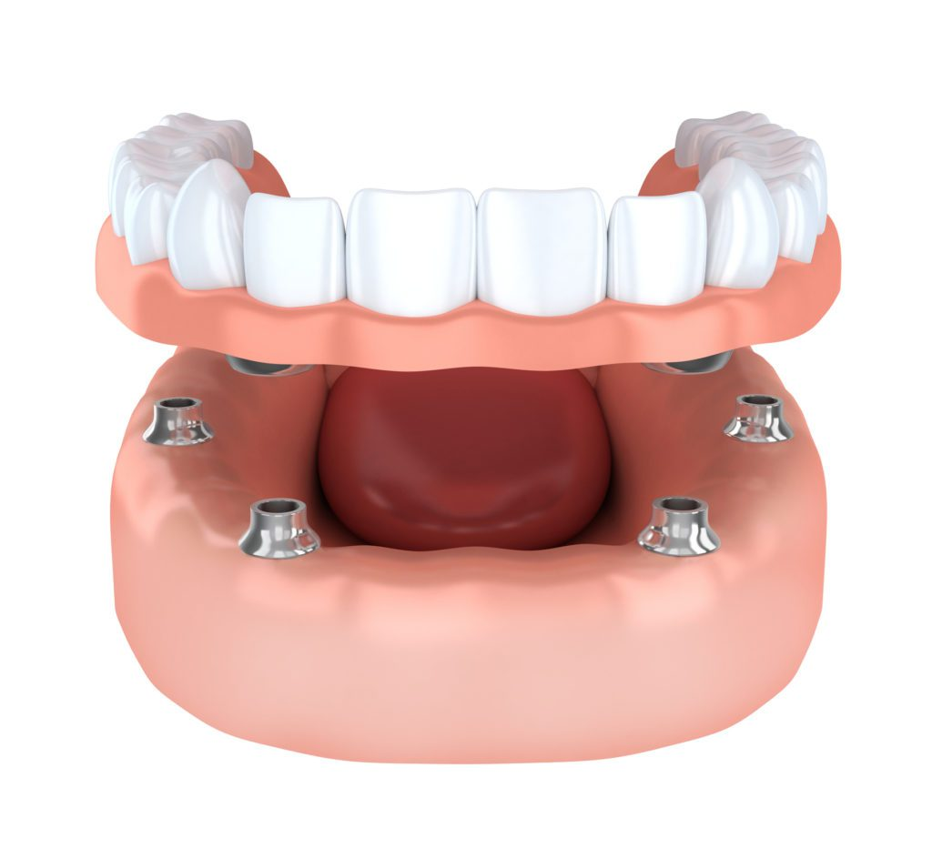 Tooth implantation, denture
