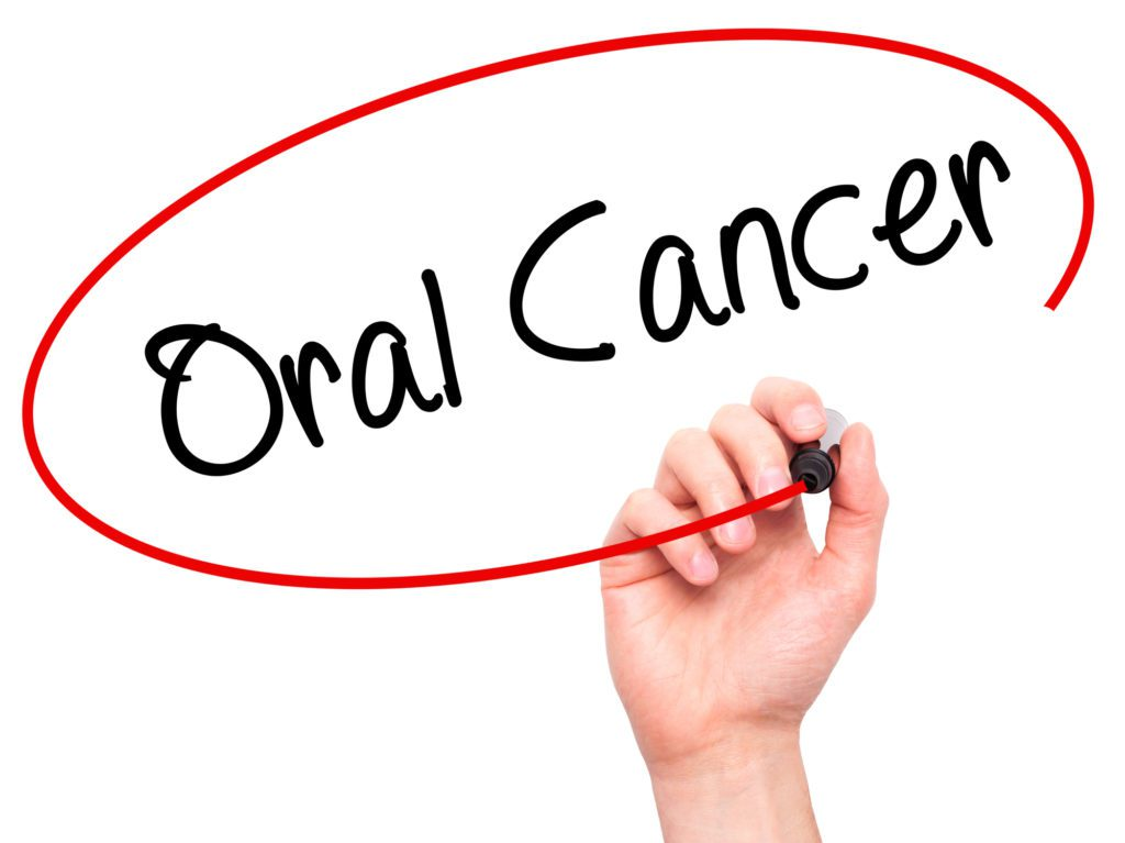 Oral Cancer Lexington KY