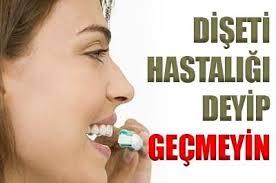 "Dişeti Hastalığı ""Periodontitis"""