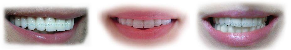 Zirkonyum Diş Dr. Sertaç Kızılkaya