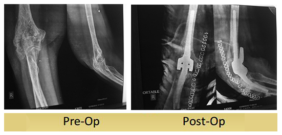 total-elbow-replacement