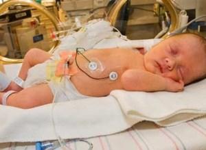 Ada 3 Penyebab Terjadinya Persalinan Anak Prematur