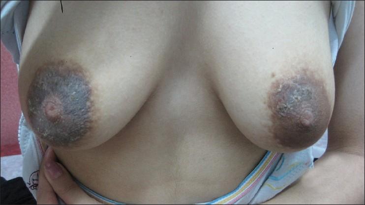 pregnant large nipple areolas