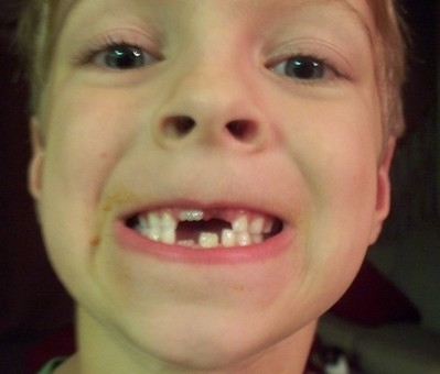boy with missing teeth; gap looks like a Tetris shape