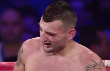 Martirosyan Lara ruled a technical draw; Garcia stops Barros