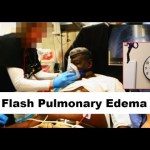 37: Edema agudo de pulmón y fallo cardiaco congestivo