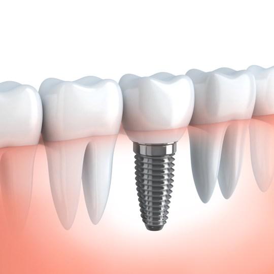 http://i2.wp.com/www.elitedental.cl/home/wp-content/uploads/2016/05/implantologia01-1.jpg?resize=540%2C540