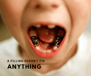 A filling doesn't fix anything-Here is why.