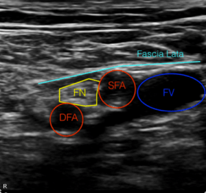 labeled femoral region