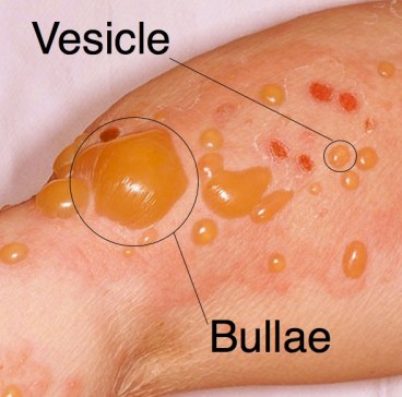 vesiculobullous