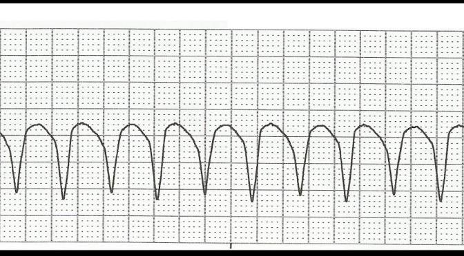 Stable Monomorphic Ventricular Tachycardia Management in the ED