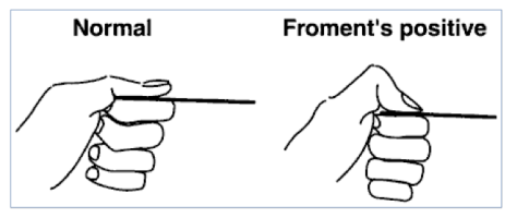 Figure 3. Froment's Test Ujash S. Physical Exam of the Hand. 2017. Available from: http://www.orthobullets.com/hand/6008/physical-exam-of-the-hand#