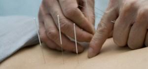 Acupuncture 09
