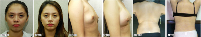 before-after-cosmetic-surgery