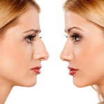 Tips For A Speedy Rhinoplasty Recovery - Enhancements Cosmetic Surgery